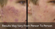 Acne treatment before and after 1