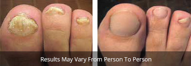 Onychomycosis treatment before and after